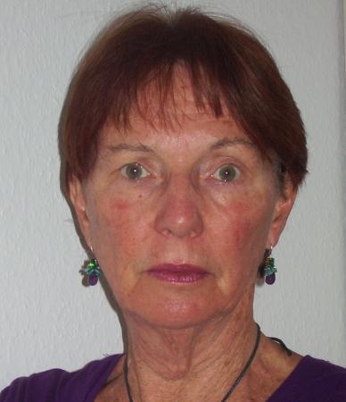 Frances Edmond